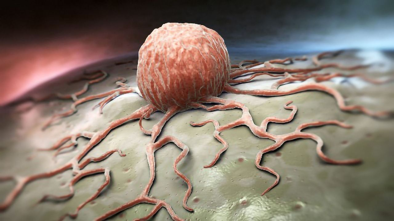 Biomolecule–Metal Complex Targets and Damages Cancer Cells