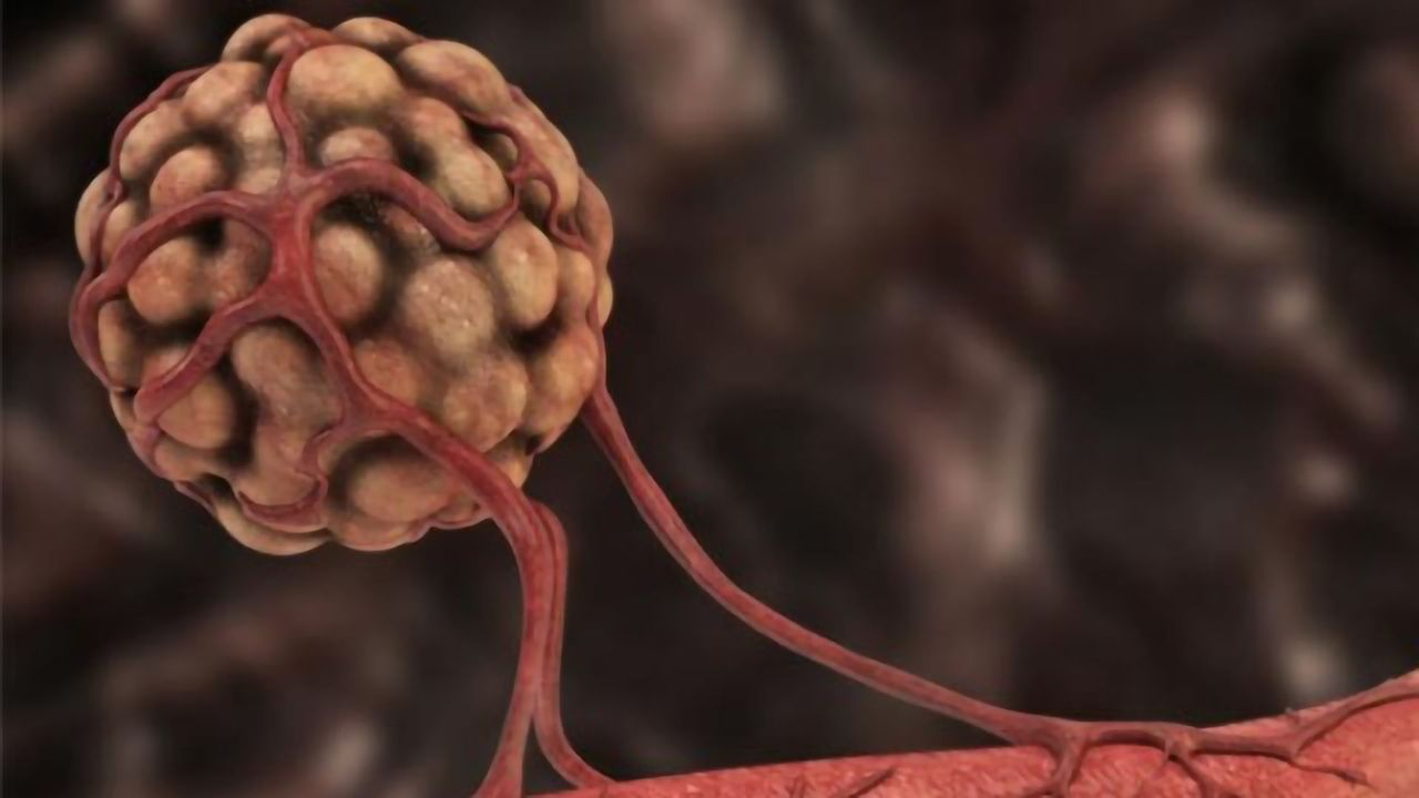 Non-Small Cell Lung Cancer: Attacking Tumors From the Inside