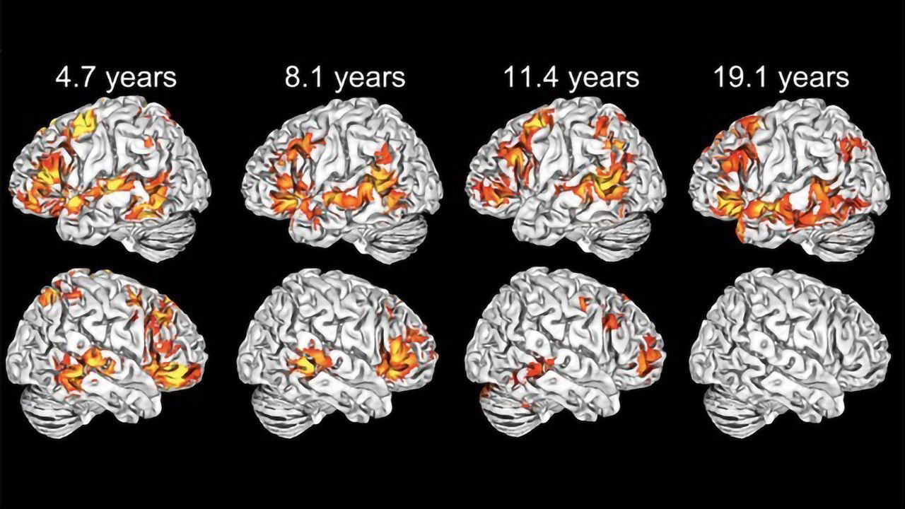 Young Children, Unlike Adults, Use Both Sides of Their Brain To Learn Language