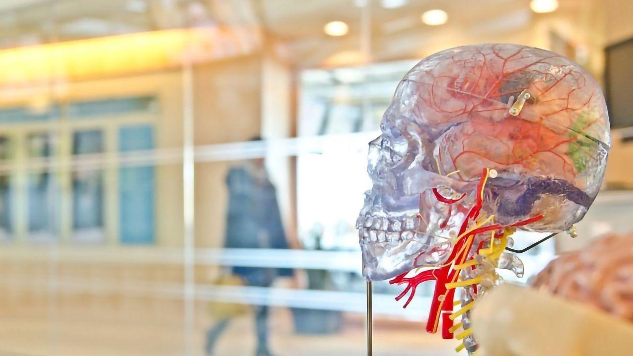 Lumpy Proteins Stiffen the Brain's Blood Vessels