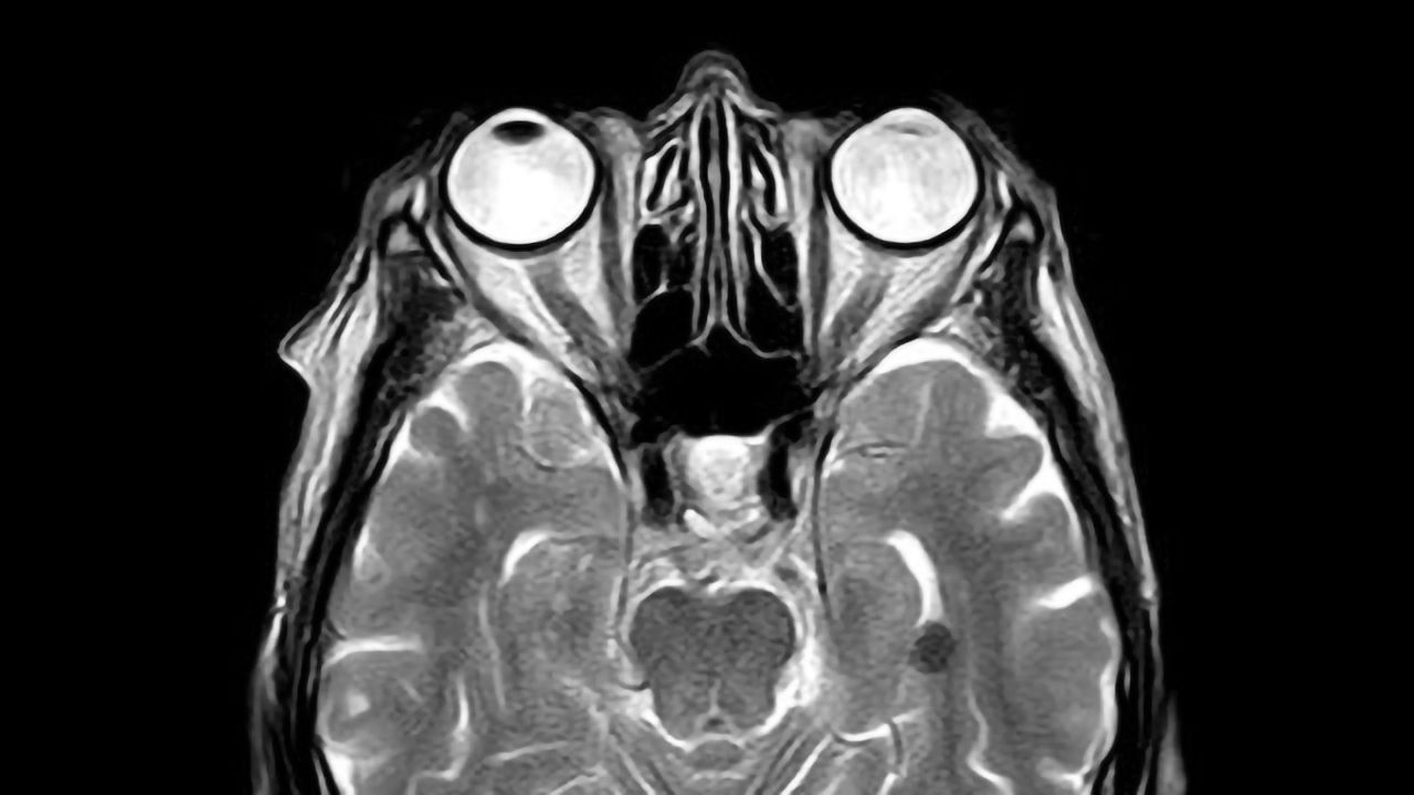 Concussion Discovery Reveals Dire, Unknown Effects of Even Mild Traumatic Brain Injuries