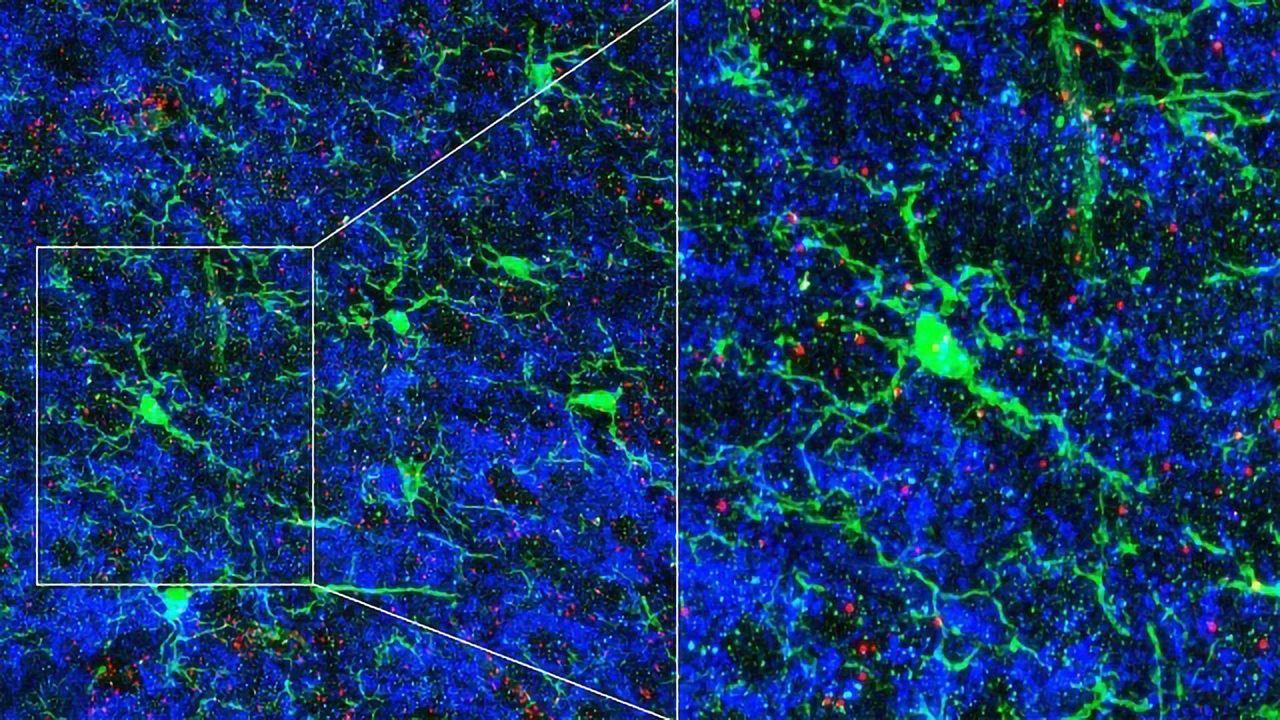 The Brain's Resident Immune Cells Help Sculpt Neural Circuits