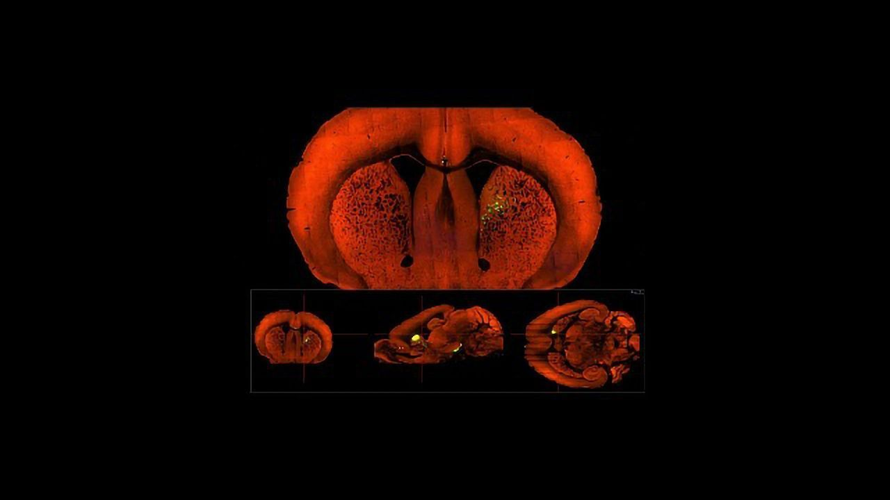 Punishment and Reward Take Similar Paths in the Mouse Brain