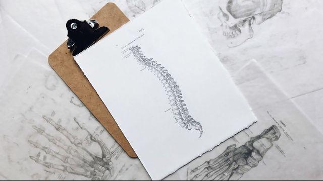 Spinal Cord Stimulation Reduces Parkinson's Patients' Pain