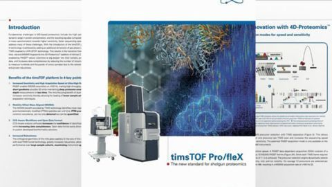Why Should You Switch to 4D-Proteomics™?
