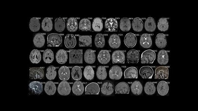 Could Genetics Play a Causal Role in Some Cases of Cerebral Palsy?