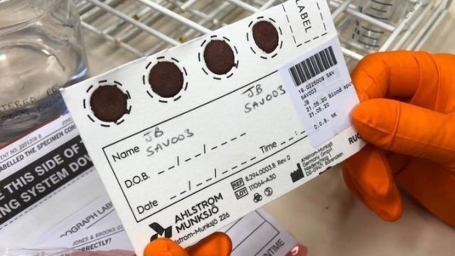 Dried Blood Spot Sampling Offers an Inexpensive Way To Widen Access to Antibody Testing for COVID-19