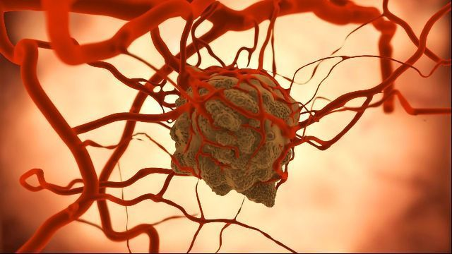 Biochip Innovation Combines AI and Nanoparticles To Analyze Tumors