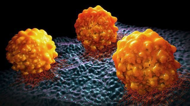 Team Discovers How Prostate Cancer Metastasizes