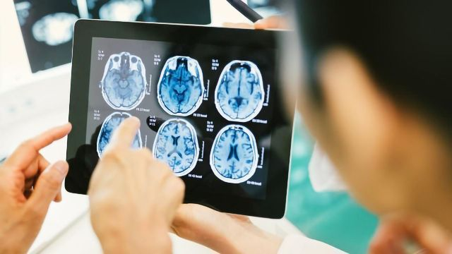 New Tool Accelerates Analysis of MRI Images
