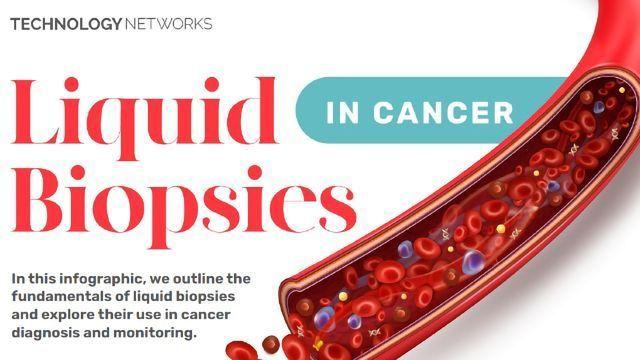 癌症中的液体活检