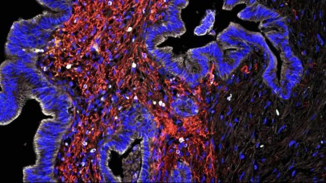 Mapping the Immune Landscape in Pancreatic Cancer To Guide Immunotherapy