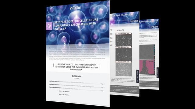 Best Practices for Cell Culture Confluency Calculation with Incellis