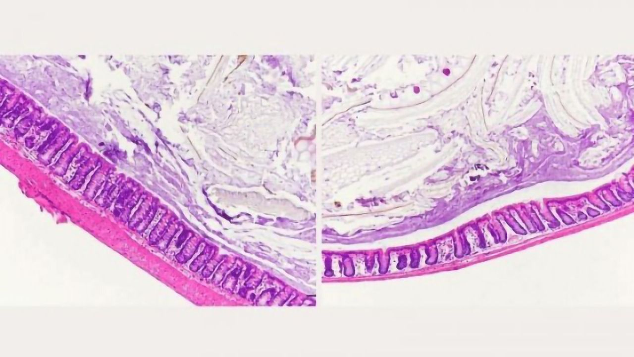 Inflammatory Bowel Disease May Be Exacerbated by High-Sugar Diet