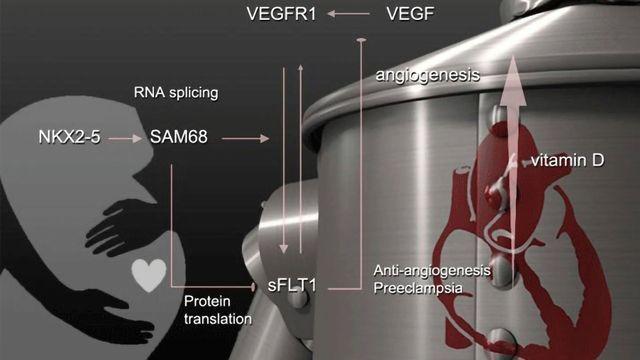 Vitamin D, Genetics and Preeclampsia