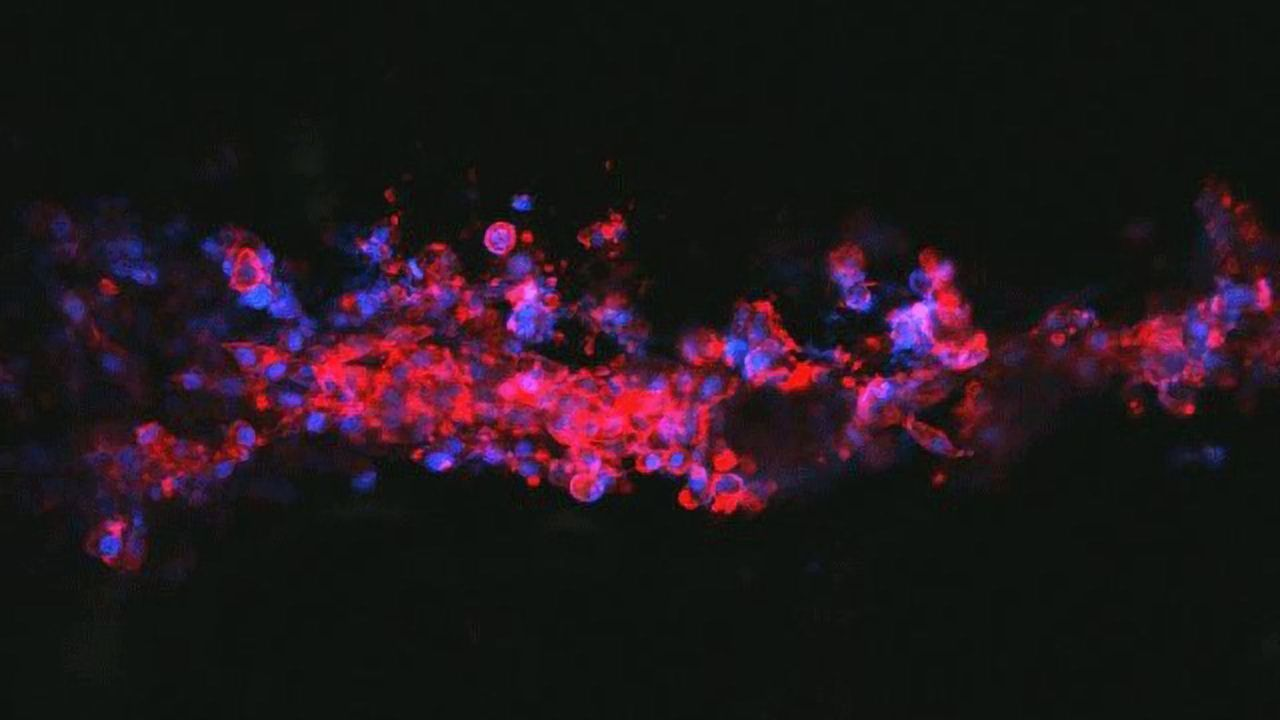 Neuron-Growing Ink Offers Hope for Nerve Repair