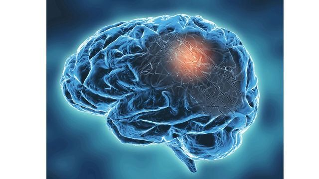 Targeting Calcium Overload Could Improve Stroke Outcomes