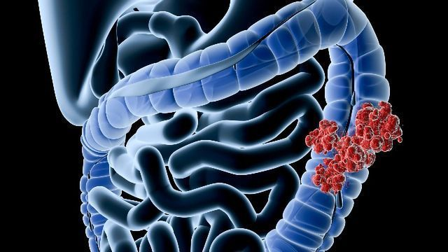 Presence of a Specific Bacterium Linked to IBS