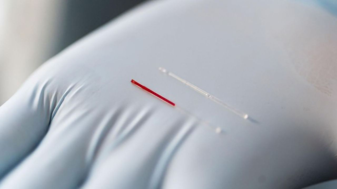 Largely Unexplored Bodily Fluid May Reveal New Biomarkers