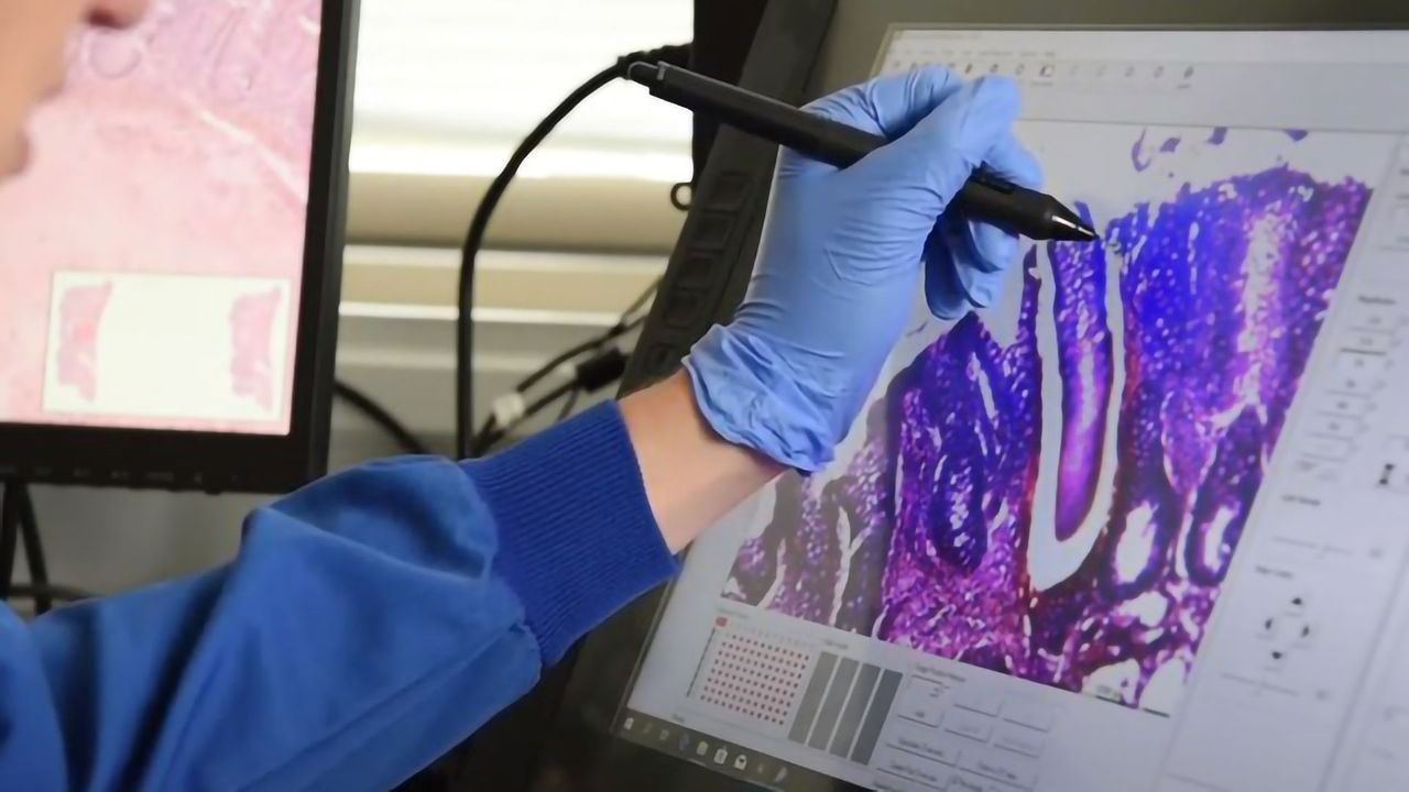 Using Laser Capture Microscopy To Study Colon Cancer and IBD