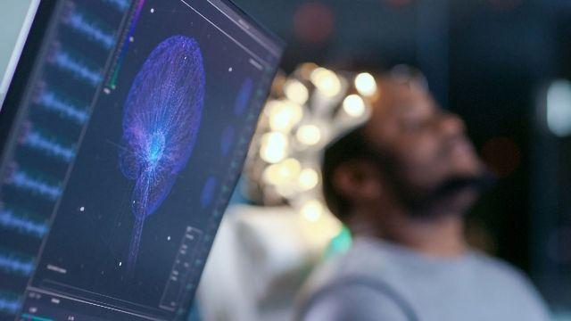 Shorter Delays Provide More Effective Neurofeedback