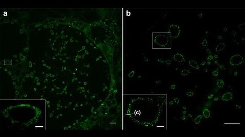 Super Resolution Detail of Cell Membranes Revealed