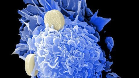 Co-Mutation Points to New Target for Aggressive Form of Lung Cancer