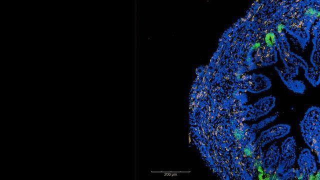 Key Cellular Changes Associated With Childhood-Onset Crohn's Disease Identified