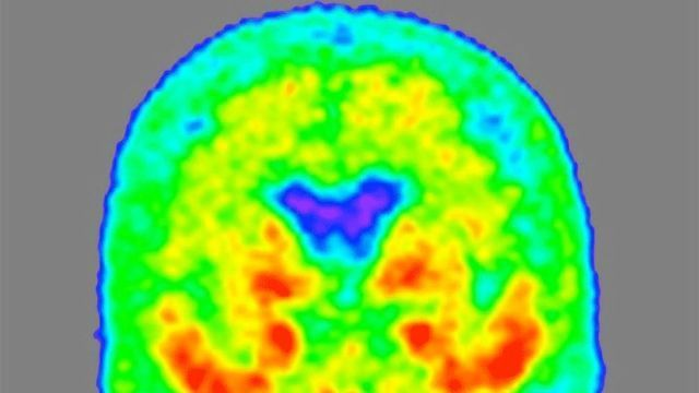 Novel Form of Alzheimer's Protein in Spinal Fluid Indicates Disease Stage