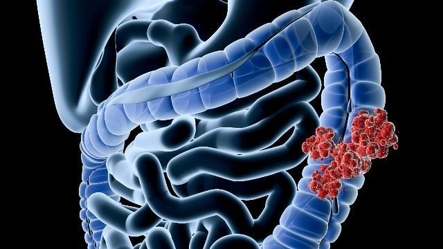 Sequencing Study Reveals the Brain in the Gut