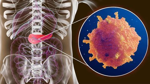 Disrupting the Process That Promotes Pancreatic Cancer's Growth