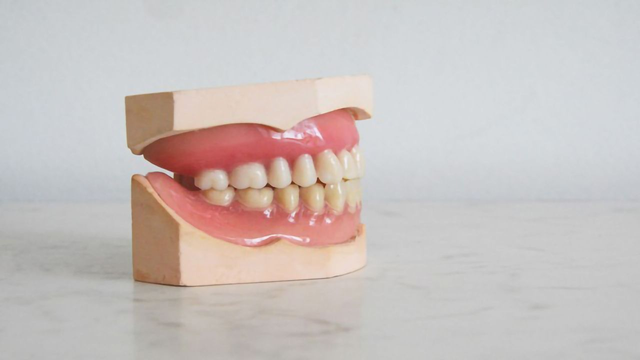 Poor Oral Hygiene May Result in Metabolic Syndrome