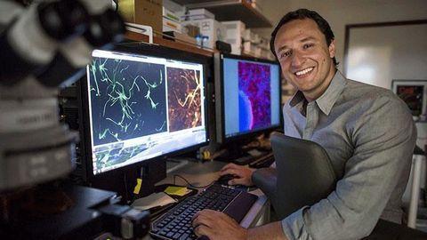 Lab-Grown Brain Organoids Mimic Genetic Form of Autism's Neural Signatures