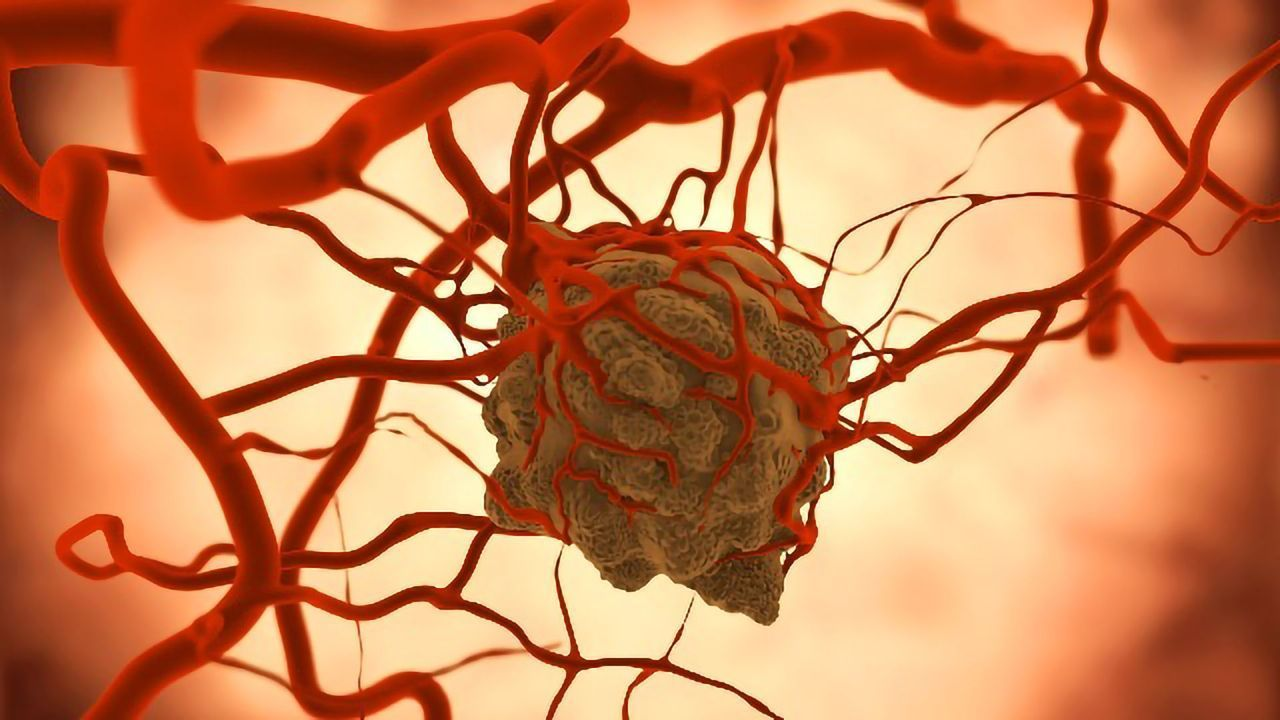 New Guidelines for Treating Complications Associated With Brain Tumors