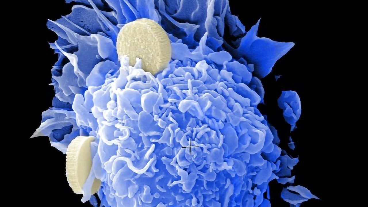 Diagnostic Marker May Help Predict Response to Cervical Cancer Treatment