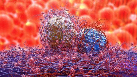 Protein Called ZFAND3 Activates Genes Involved in Glioblastoma Invasiveness