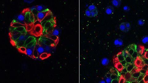 3D Cell Culture: Miniature Dimensions Drive Massive Advances