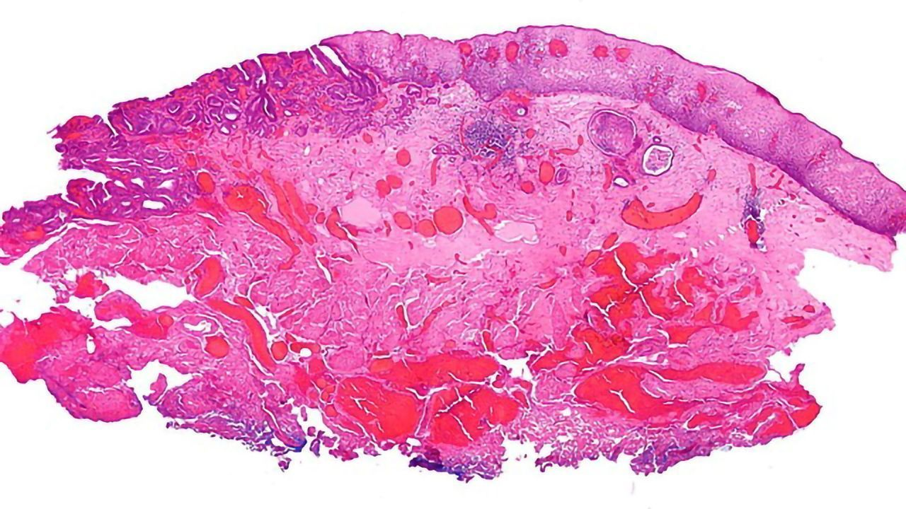 Incidence of Esophageal Adenocarcinoma Is Rising in Younger Adults