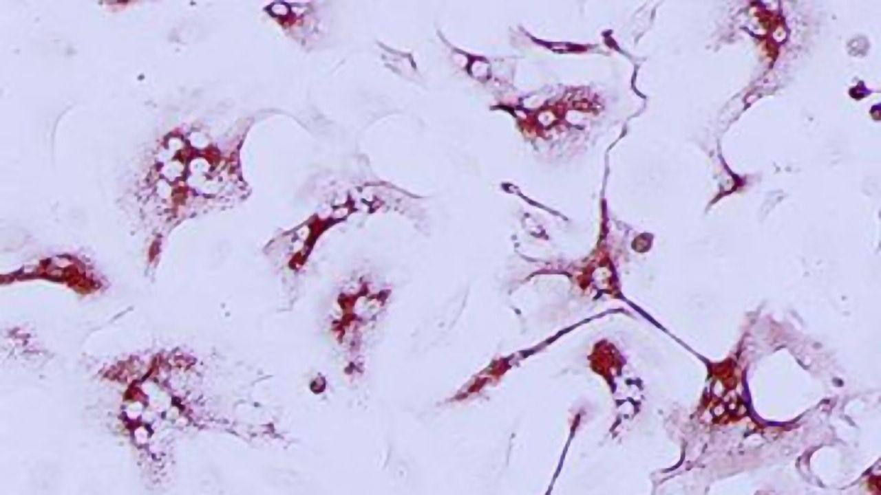 Endothelial Cell Targeting Could Help Fight COVID-19 Symptoms