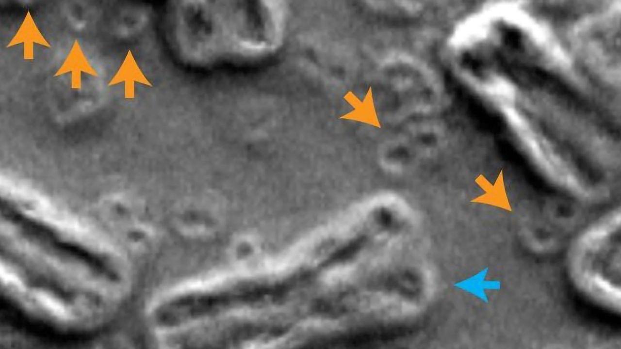 Shattered Chromosomes Help Cancer Cells Evade Treatment