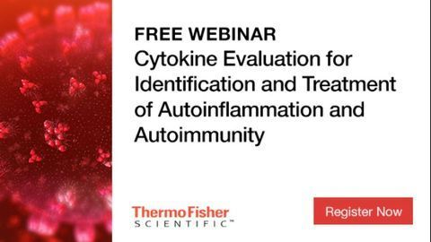 Cytokine Evaluation Can Help Establish Autoinflammatory and Autoimmune Diagnosis and Guide Treatment