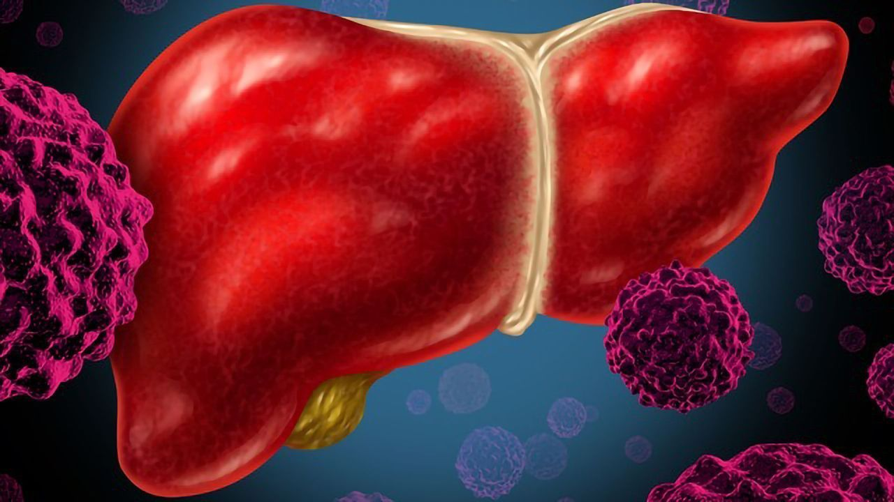 Why Cancer Patients With Liver Metastases Have a Poor Response to Immunotherapy