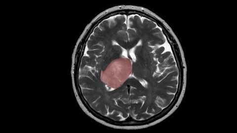 Brain Tissue Healing Process Could Spur Growth of Tumors