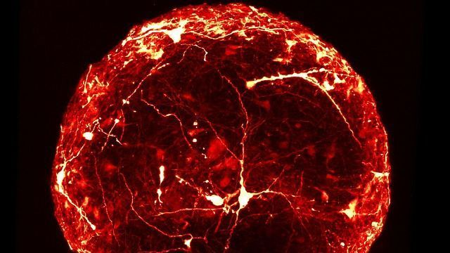 Detailed Internal Structure of a Mini-Brain Organoid Revealed for the First Time