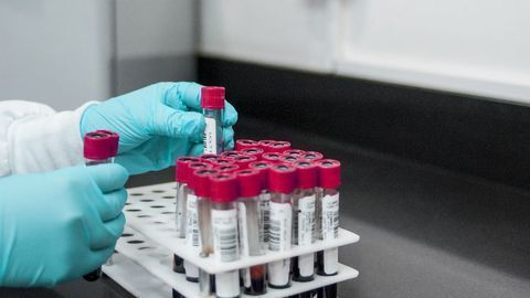 New Lab-on-a-Chip Turns Blood Test Snapshots Into Continuous Movies