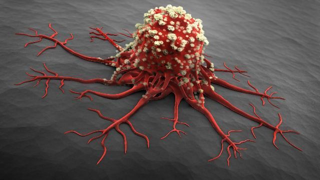 Enzyme in Tumor Cells Could Be Used To Monitor Cancer Treatment