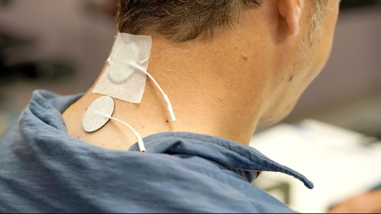 Non-Invasive Stimulation Helps Restore Mobility to Spinal Cord Injury Patients