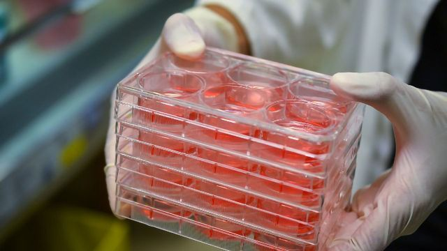 Cell Culture Contamination: Mycoplasma and Problematic Cell Lines Continue To Cause Concern
