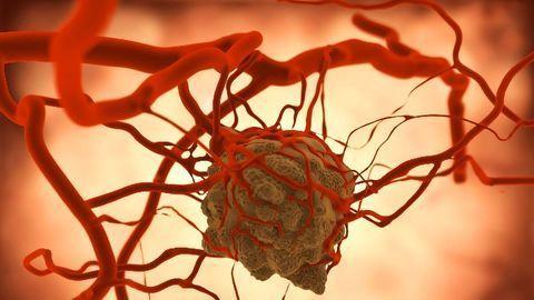 Drug May Reduce Tumor Volume in Neurofibromatosis