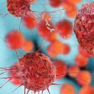 Computational Tool Differentiates Between Data From Cancer Cells and Normal Cells